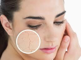 Mẹo giúp bạn chăm sóc da và mỗi khi chuyển mùa hanhkhô